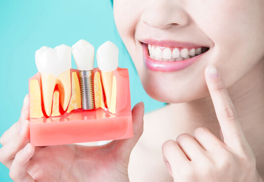 How Long Will Dental Implants Last
