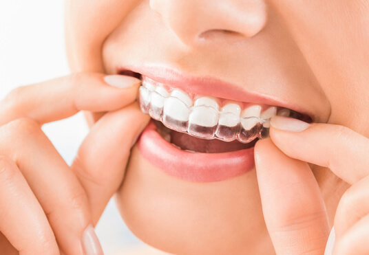 What Is Invisalign Or Clear Aligner Treatment