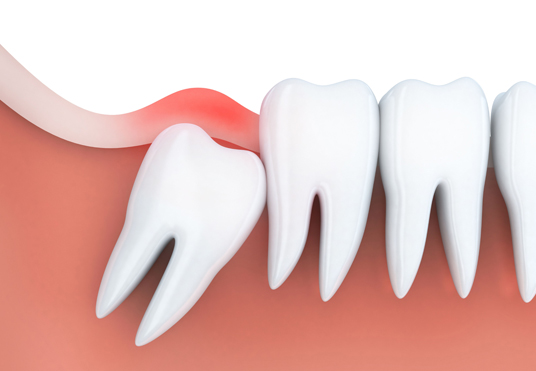 Why Is Wisdom Tooth Removal Important