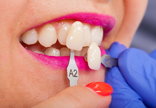 Why Might You Need Porcelain Veneers