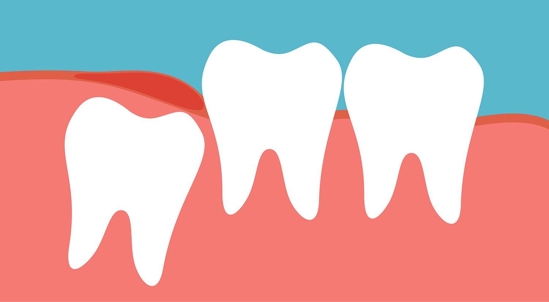 Wisdom Teeth Coming In New Hero Img Blue