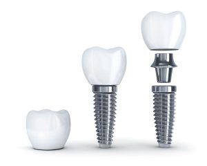 Client Series Of Implants