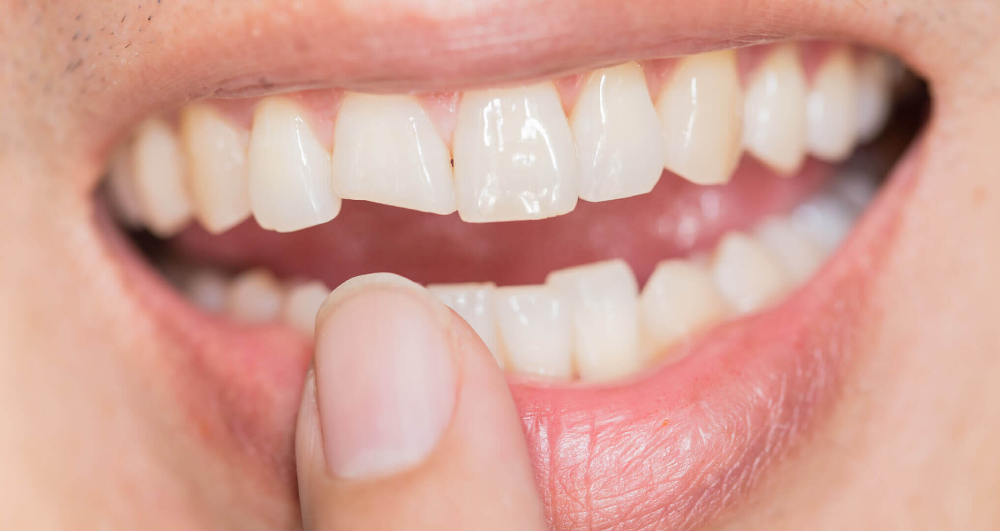 How To Fix A Broken Tooth At Home Advanced Dental Care Of Anderson
