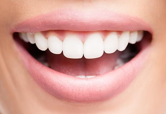 closeup of a bright, white smile